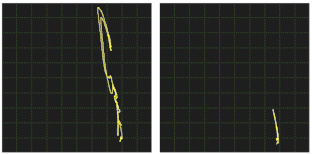 Eddy Current Crack Signal
